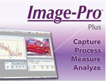 Image-Pro Plus Image Analysis Software for Fully Automatic Feature Size, Shape and Colour Analysis