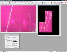 Live Tiling and Live EDF Module for Image-Pro Plus Image Analysis Software