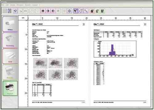 Ellix Image Analysis System for Fully Automatic Particle Counting and Sizing